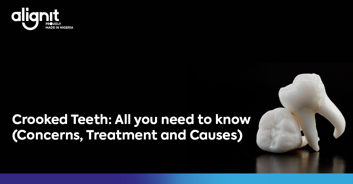 Crooked Teeth: All you need to know (Concerns, Treatment and Causes)