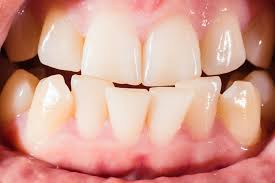Braces, Clear Aligners, Crooked Teeth